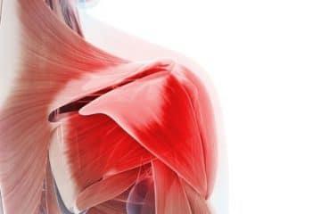3 Tips to Relieve Frozen Shoulder