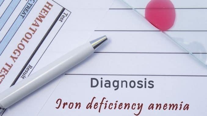 Diagnosis Iron deficiency anemia