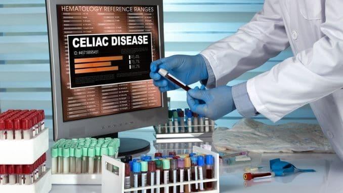 examining blood sample