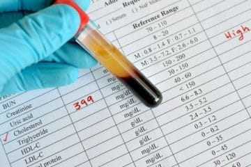 My Cholesterol Levels Are High – Now What?